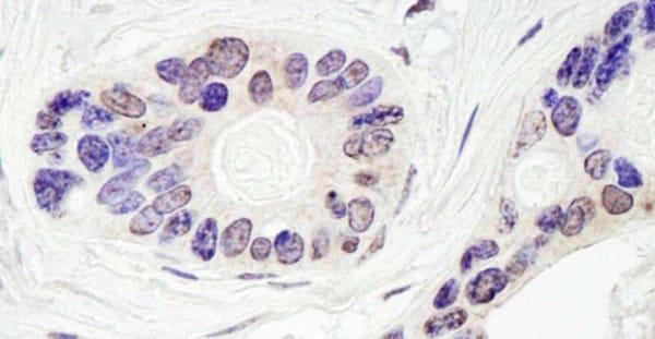 Immunohistochemistry (Formalin/PFA-fixed paraffin-embedded sections) - Anti-TDP1 antibody (ab224822)