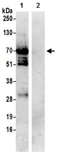 Immunoprecipitation - Anti-DNA Polymerase lambda/Polk antibody (ab224823)