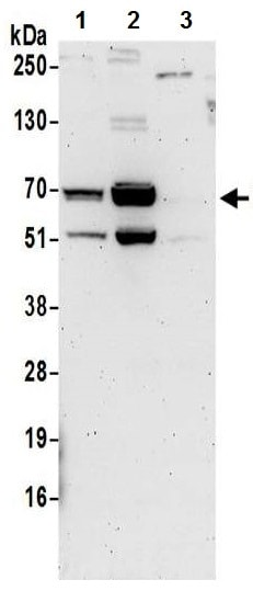 Western blot - Anti-DNA Polymerase lambda/Polk antibody (ab224823)