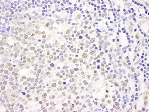 Immunohistochemistry (Formalin/PFA-fixed paraffin-embedded sections) - Anti-p150 CAF1/CAF antibody (ab224824)