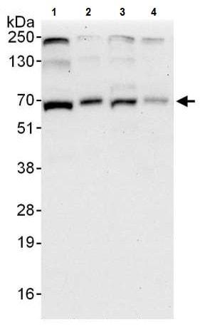 Western blot - Anti-ARL6IP2 antibody (ab224825)