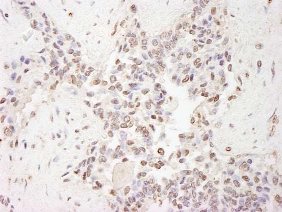 Immunohistochemistry (Formalin/PFA-fixed paraffin-embedded sections) - Anti-MBD2 antibody (ab224827)