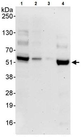 Western blot - Anti-Cdk8 antibody (ab224828)