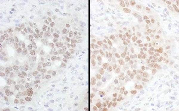 Immunohistochemistry (Formalin/PFA-fixed paraffin-embedded sections) - Anti-CHD8 antibody (ab224830)