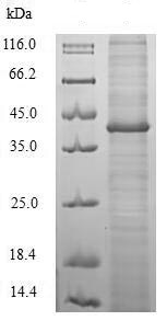 SDS-PAGE - Recombinant Helicobacter pylori CagA protein (Tagged) (ab224836)