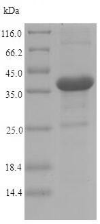 SDS-PAGE - Recombinant Invasin protein (His tag) (ab224847)
