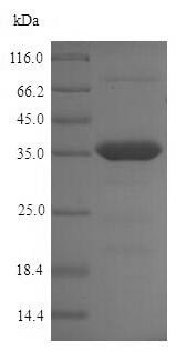 SDS-PAGE - Recombinant Chlamydia trachomatis OmcB protein (His tag) (ab224862)