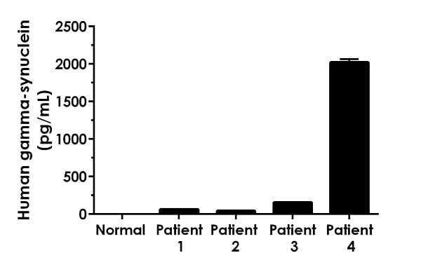 Urine from pooled normal human and four individual bladder cancer patients (male: n=3; female: n=1) human donors was measured in duplicate