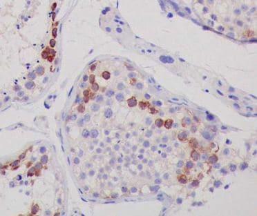 Immunohistochemistry (Formalin/PFA-fixed paraffin-embedded sections) - Anti-CTAG1B antibody [EPR13780] - BSA and Azide free (ab225536)
