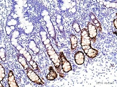 Immunohistochemistry (Formalin/PFA-fixed paraffin-embedded sections) - Anti-SOX9 antibody [EPR14335-78] - BSA and Azide free (ab225541)