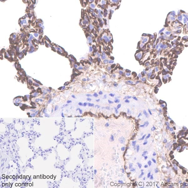 Immunohistochemistry (Formalin/PFA-fixed paraffin-embedded sections) - Anti-Thrombomodulin antibody [EPR18217] - BSA and Azide free (ab225552)