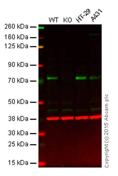 Western blot - Anti-PKC zeta antibody [EP1490(2)] - BSA and Azide free (ab225554)