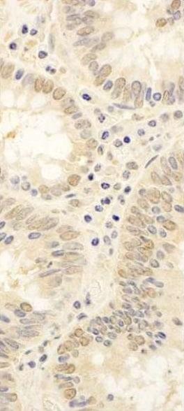 Immunohistochemistry (Formalin/PFA-fixed paraffin-embedded sections) - Anti-FAF1 antibody (ab225556)