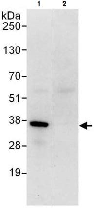 Immunoprecipitation - Anti-OTUB1 antibody (ab225559)