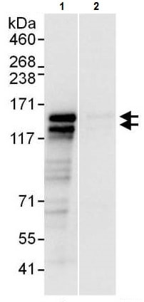 Immunoprecipitation - Anti-RTN3/HAP antibody (ab225560)