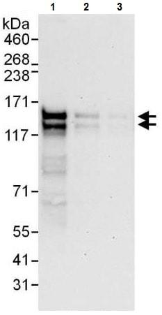 Western blot - Anti-RTN3/HAP antibody (ab225560)
