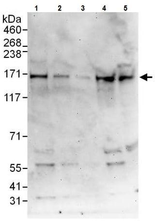 Western blot - Anti-DNA polymerase alpha/POLA antibody (ab225562)