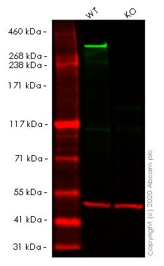 Western blot - Anti-Huntingtin antibody [EP867Y] - BSA and Azide free (ab225573)