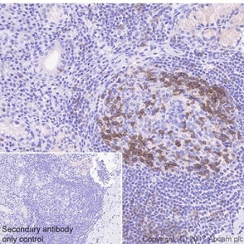 Immunohistochemistry (Formalin/PFA-fixed paraffin-embedded sections) - Anti-ICOS antibody [EPR20560] - BSA and Azide free (ab225577)