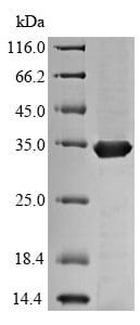 SDS-PAGE - Recombinant Mycobacterium tuberculosis Mycobacterium tuberculosis Ag85 protein (His tag) (ab225596)