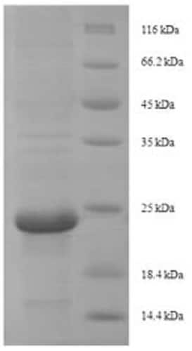 SDS-PAGE - Recombinant Beta-mammal toxin Css4 protein (His tag) (ab225603)