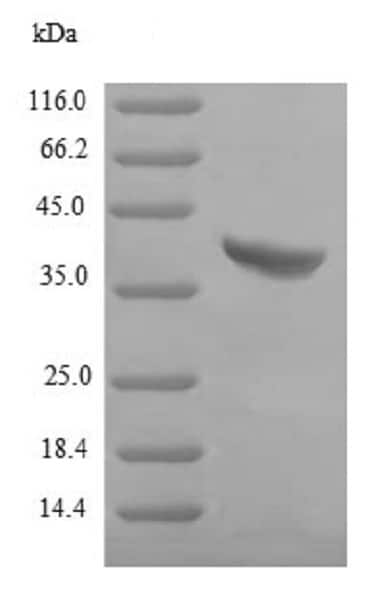 SDS-PAGE - Recombinant Staphylococcus aureus hlgB protein (His tag) (ab225605)