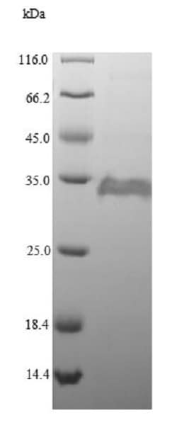 SDS-PAGE - Recombinant <em>E. coli </em> PPIA protein (His tag) (ab225608)