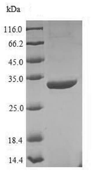 SDS-PAGE - Recombinant uvsY protein (His tag) (ab225610)