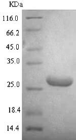 SDS-PAGE - Recombinant <em>E. coli </em> DNA binding protein HU alpha (Tagged) (ab225611)