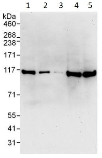 Western blot - Anti-SND1 antibody (ab225620)