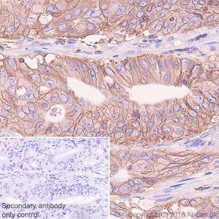 Immunohistochemistry (Formalin/PFA-fixed paraffin-embedded sections) - Anti-HLA Class 1 ABC antibody [EPR22172] (ab225636)