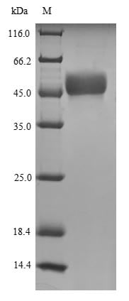 SDS-PAGE - Recombinant Human MORC3 protein (Tagged) (ab225648)