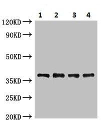 Western blot - Anti-Lipoate-protein ligase A antibody (ab225683)