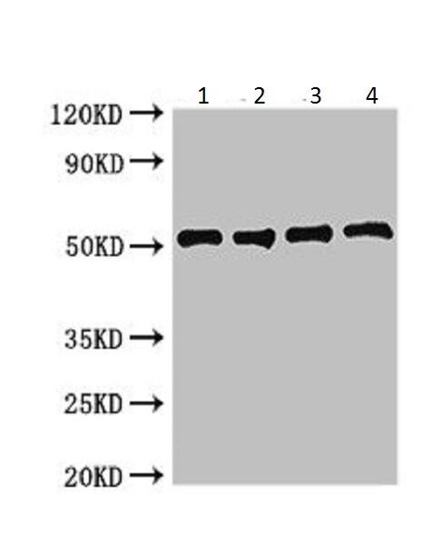 Western blot - Anti-IdhA antibody (ab225691)