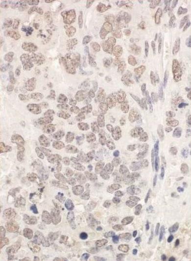 Immunohistochemistry (Formalin/PFA-fixed paraffin-embedded sections) - Anti-PUF60/FIR antibody (ab225698)
