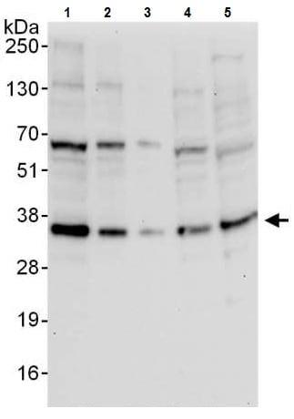 Western blot - Anti-RCAS1 antibody (ab225701)