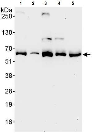 Western blot - Anti-TCP1 alpha/CCTA antibody (ab225702)