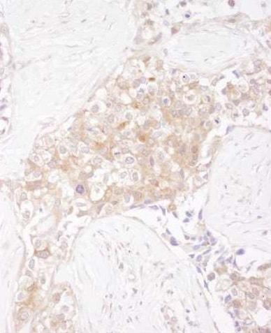 Immunohistochemistry (Formalin/PFA-fixed paraffin-embedded sections) - Anti-TCP1 alpha/CCTA antibody (ab225702)