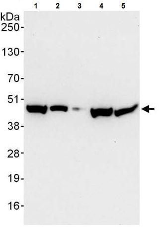 Western blot - Anti-EBP1 antibody (ab225704)