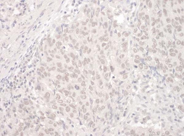 Immunohistochemistry (Formalin/PFA-fixed paraffin-embedded sections) - Anti-PUF60/FIR antibody (ab225705)