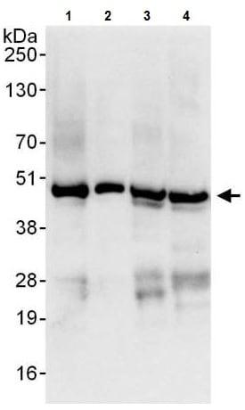 Western blot - Anti-YB1 antibody (ab225706)