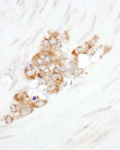 Immunohistochemistry (Formalin/PFA-fixed paraffin-embedded sections) - Anti-YB1 antibody (ab225706)