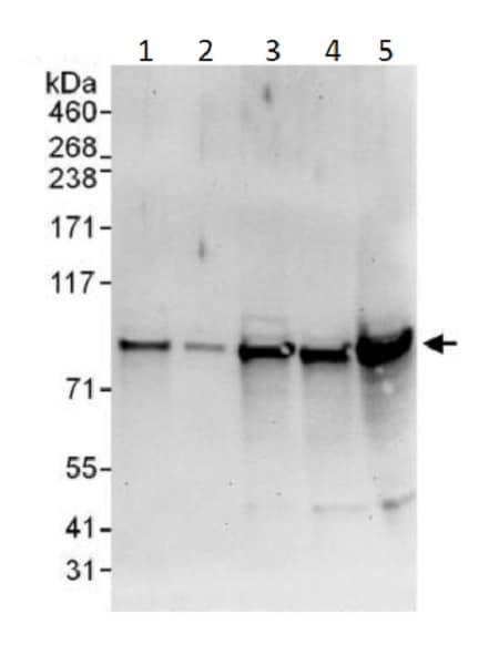 Western blot - Anti-Cullin 1/CUL-1 antibody (ab225709)