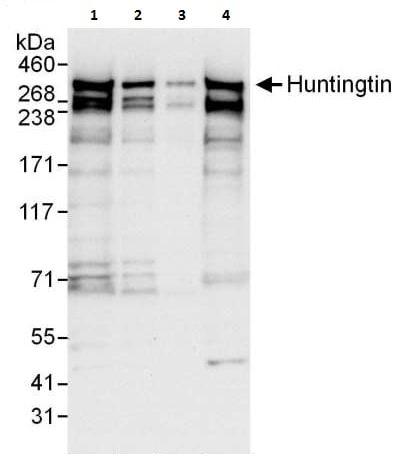 Western blot - Anti-Huntingtin antibody (ab225711)