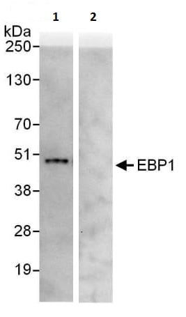 Immunoprecipitation - Anti-EBP1 antibody (ab225713)
