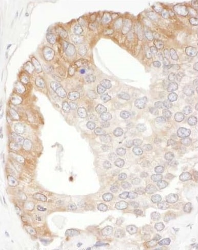 Immunohistochemistry (Formalin/PFA-fixed paraffin-embedded sections) - Anti-EBP1 antibody (ab225713)