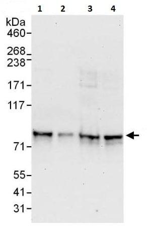 Western blot - Anti-LIMD1 antibody (ab225714)