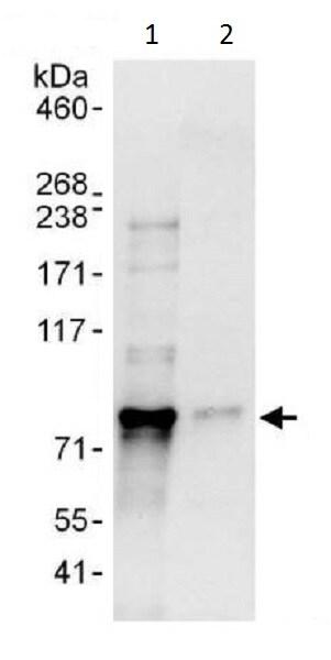 Immunoprecipitation - Anti-LIMD1 antibody (ab225714)