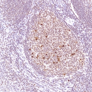 Immunohistochemistry (Formalin/PFA-fixed paraffin-embedded sections) - Anti-Cleaved PARP1 antibody [SP276] (ab225715)