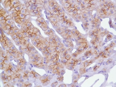 Immunohistochemistry (Formalin/PFA-fixed paraffin-embedded sections) - Anti-N Cadherin antibody [SP90] - C-terminal (ab225719)